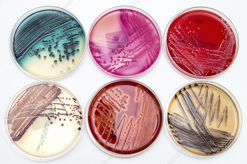 Bacterial Culture and Media